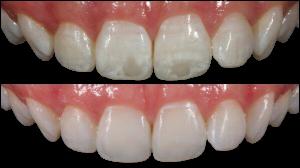 Fotka porovnávající výsledek léčby bílých skvrn.