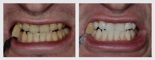 13.zuby