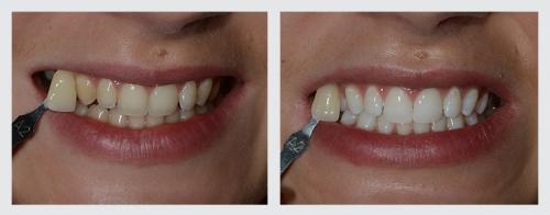 2.zuby