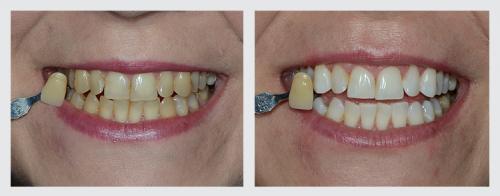 4.zuby