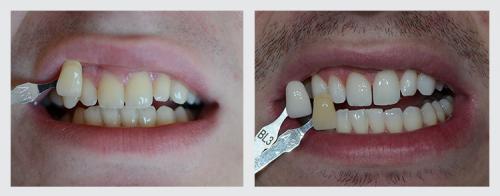 8.zuby