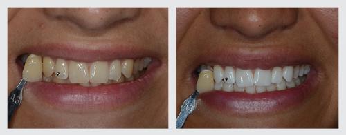 9.zuby
